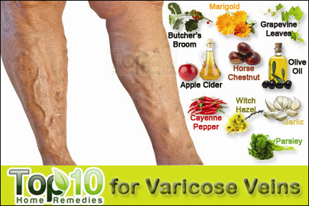 food for varicose veins